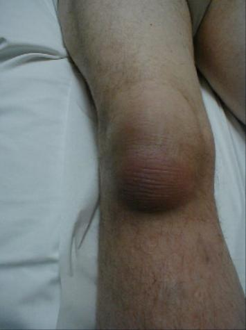 bursitis_knee.jpg
